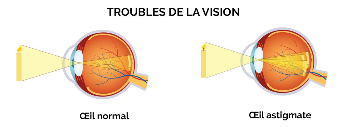 Quels symptômes lorsque l'on est astigmate ? COVO 95