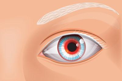 Albinisme oculaire : causes et symptômes