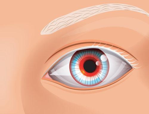 Qu'est-ce que l'albinisme oculaire ?